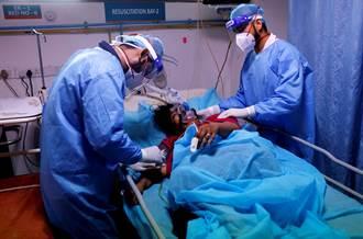 印度治新冠再爆罕見疾病 致死率達5成 患者摘除眼睛保命