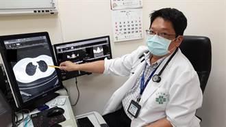 無不良惡習也無家族史 28歲女健檢竟發現多發性肺腫瘤