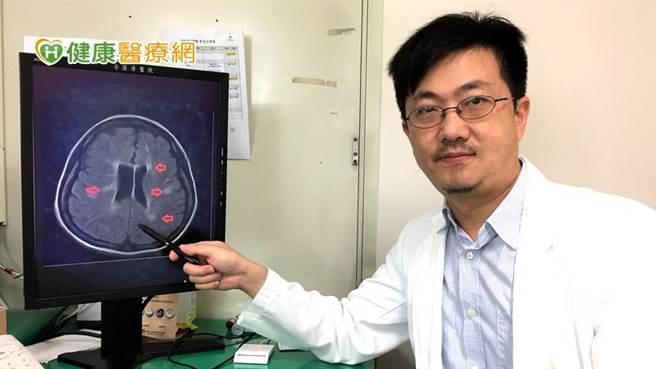 澄清醫院神經內科鄧浩文醫師表示,多發性硬化症的罹病高峰期正處人生黃金時期,恐因疾病影響人生規劃、事業及家庭。(圖/健康醫療網提供)