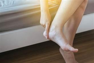 不是變胖!突然腳好腫是大問題 嚴重將截肢恐致命