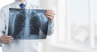 確診者「慘白一片」肺部X光傷害不可逆 醫直言:下半生恐攜氧氣筒