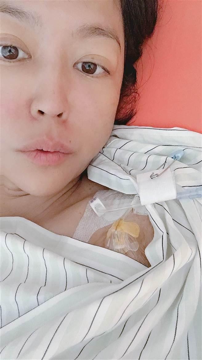 唐玲化療時裝人工血管。(照片/唐玲 提供)
