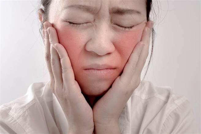 好發於年輕女性、症狀百百款的紅斑狼瘡,醫師提出有效控制5原則。(示意圖/Shutterstock)