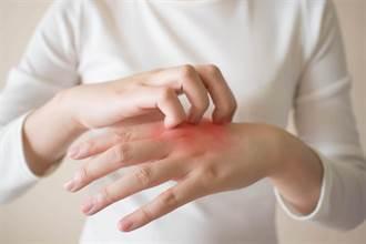 豪雨讓汗皰疹患者成受災戶 醫:發作時保養順序很重要