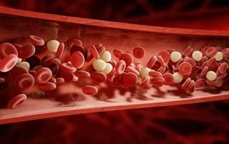 長者怕血栓不敢打AZ?醫:這類血栓才與疫苗有關 血濃稠者須留意