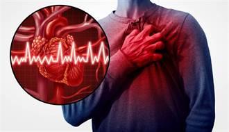 突感心臟「被繩子綁住」恐是心絞痛 必知保命關鍵