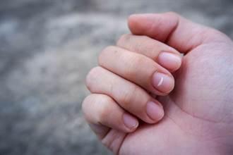 指甲為何有白點?異常訊息透露的身體求救訊號