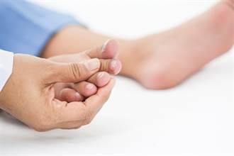 確診新冠指甲也會有異狀 醫示警:4病徵要小心