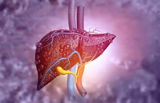 肝癌年輕化?台灣新發現肝癌患者 過半不到60歲