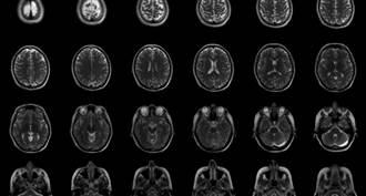 染過COVID-19的人大腦灰質會顯著減少!增加罹患阿茲海默症機率