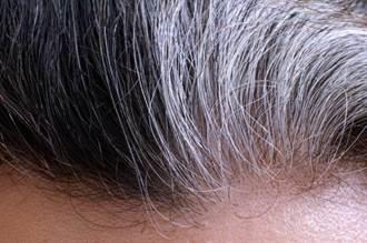 最新研究發現頭髮變白是可逆性的,它可以恢復成原來的顏色!