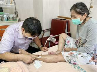 資源回收婦砸斷腿 醫師跨海救援成功