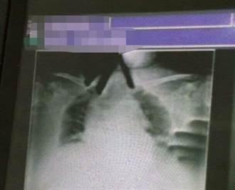 阿嬤突喘不過氣 醫急照X光片驚見有「手」掐著她