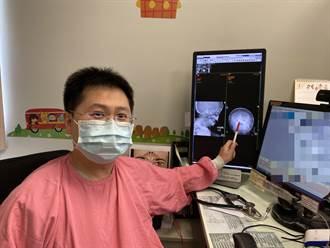 2歲男童想吐鼻流膿 就醫鼻腔驚見鈕扣電池