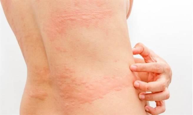 施打完疫苗產生皮膚過敏、蕁麻疹等反應,不用太過恐慌。(圖片來源 / Shutterstock)