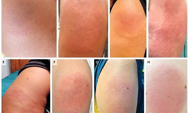 新冠手臂是施打疫苗後較常見的皮膚反應。(圖片來源 / The New England Journal of Medicine, DOI: 10.1056/NEJMc2108620)