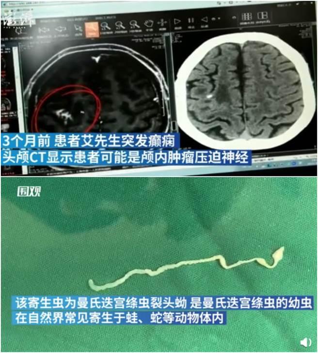 男子顛癇發作送往醫院,醫生經過腦部斷層掃描檢查。才發現他顱內藏了一條10公分的寄生蟲。(圖/微博@澎湃新聞)