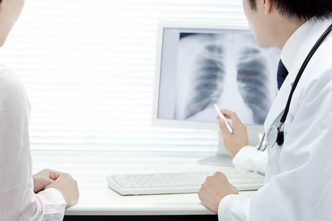 感染新冠肺肺炎後,恐出現肺纖維化的後遺症,而治療藥物價格相當驚人,窮人根本吃不起。(圖/Shutterstock)