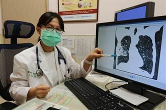 30年老菸槍易喘發燒竟是阻塞性肺病