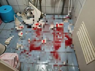 洗手台突爆裂 台南10歲女童被割傷送醫
