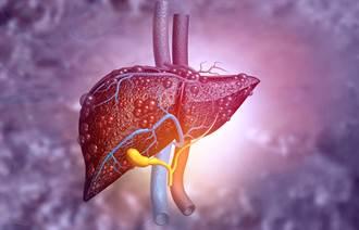 膽固醇也能顧肝? 美研究點出關鍵所在