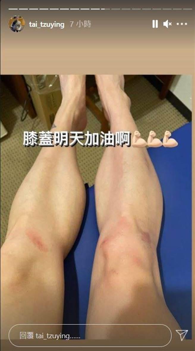 戴資穎救球之後膝蓋擦傷。(摘自IG)