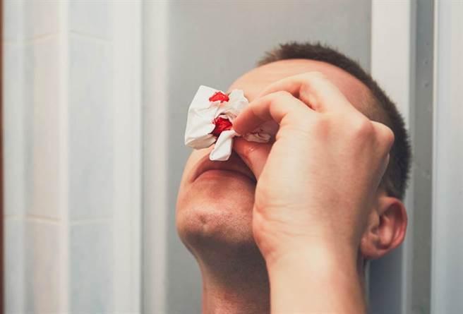 國內一位40多歲男醫師自曝在6月接種AZ疫苗後常常莫名流鼻血,跑遍各大診所、醫院治療仍無效,最後靠中西醫治療後才終於得到緩解,坦言不敢再打第二劑。(示意圖/Shutterstock)