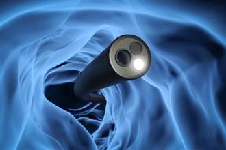 大腸鏡檢查搭配這件事 醫:可降76~90%大腸癌發生率