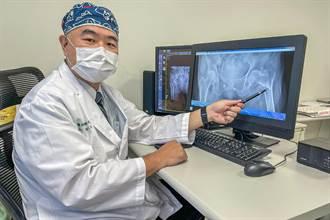 人瑞跌倒骨折無法動彈 中醫大新竹附醫「微創閉鎖復位鋼釘固定」手術3天後出院