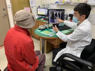 肺癌婦控制病況又轉移復發 二、三代標靶藥物接力治療