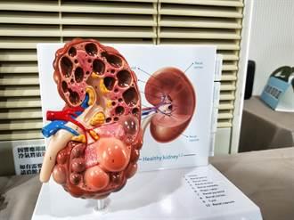 國中生血壓飆到150醫師驚覺不尋常!腎臟長水泡未來恐洗腎