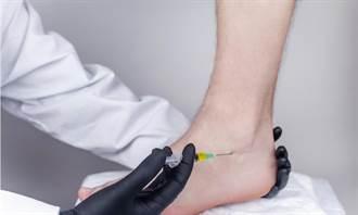 女星腳傷卻暴肥 醫:類固醇用得好是仙丹 用不好是毒藥