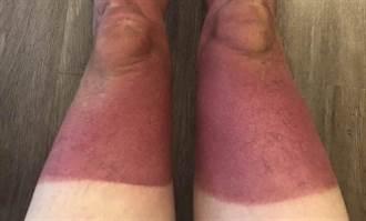 曬傷變紅塗擦這些能舒緩  必知水泡、疼痛處理法 3狀況快就醫