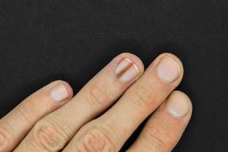 從指甲看出健康警訊 醫曝5大跡象:有黑線恐罹癌
