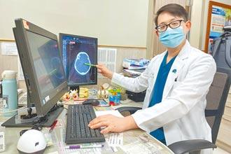 微創血管內栓塞 搶救顱內動脈瘤病患