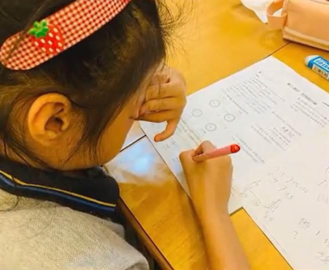 浙江一名9歲女童只要寫數學作業,眼睛四周就會產生過敏紅腫的現象。(圖/翻攝自微博)