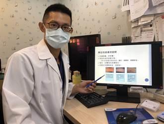 疫情期間活動量少賴在冷氣房 恐致異位性皮膚炎惡化