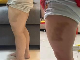 3歲童放學左腿大片瘀青 媽暴怒網見形狀笑:兇手在地上