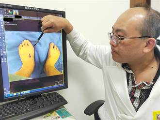 拇趾外翻慎選手術方式可防復發