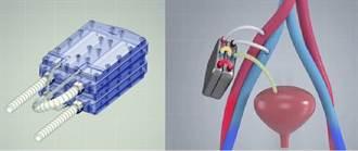 終結洗腎  加州大學發明人工腎臟原型