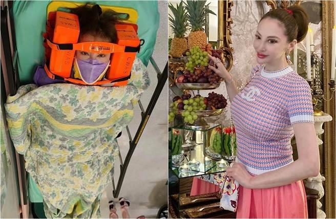 「社交皇后」薛芷倫出嚴重車禍,成了兩車的夾心,送醫照片也曝光。(取材自Fanny Sieh臉書)
