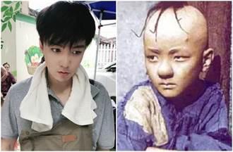 化妝師失誤導致罹病嚴重脫髮 童星頭部縫300針現況曝光