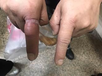 男食指遭鋼戒鎖死「腫脹發紫」 消防員出大招神救援
