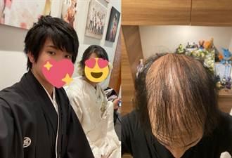 打莫德納掉髮不停 日本帥男慘變火雲邪神:100天後會全禿