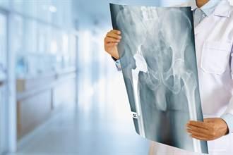 尿出血急就醫 照X光見詭異鴕鳥蛋 醫驚:全被塞滿了