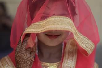 印度女童「對稱臉」5官全分裂 擁2鼻被當神膜拜