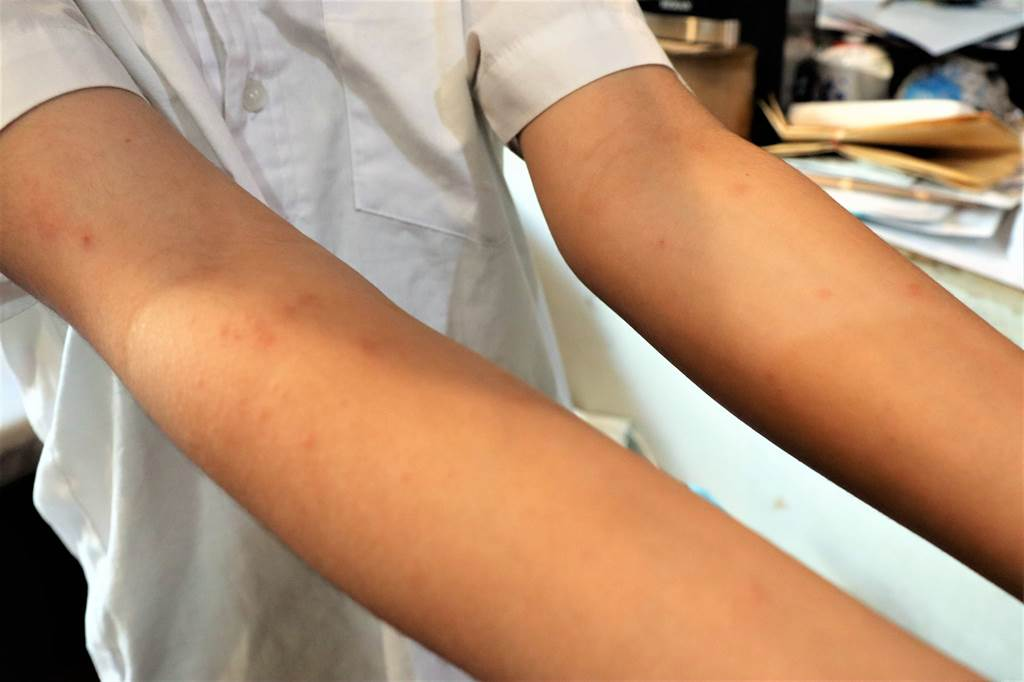 澎湖民眾突發紅疹奇癢難耐,紛紛至診所就醫。(圖/翻攝活力澎湖公益平台臉書)