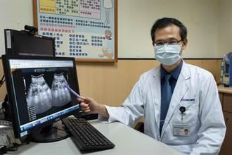 妙齡女遺傳多囊腎 口服新藥延緩洗腎時間