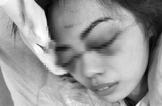 女店員雙眼受傷嚴重,仍在醫院治療。(摘自爆料公社)