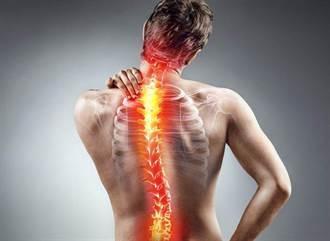 坐骨神經痛就是長骨刺?舒緩腰痛 日常這些動作都要少做